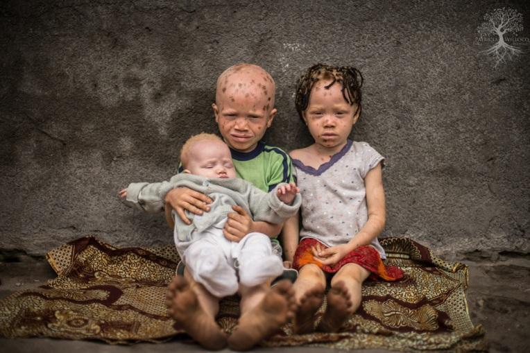 l'albinisme en Afrique