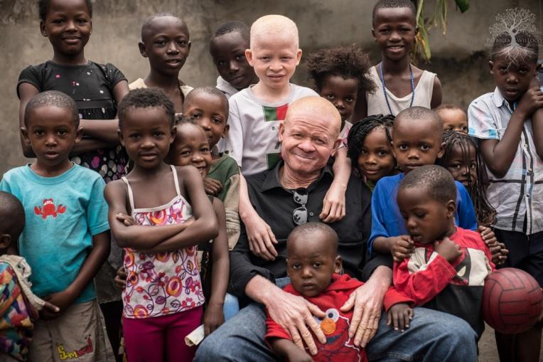 L'albinisme enfants en Afrique