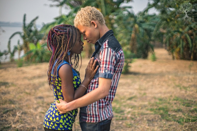 Albino in DRCongo