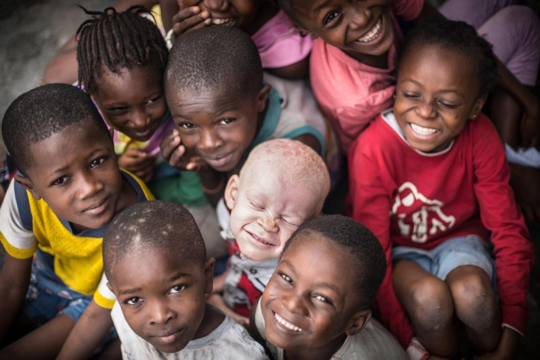 albinism in africa